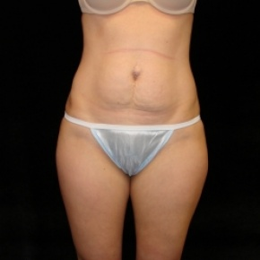 Before Photo - Tummy Tuck - Case #2813 - Mini Abdominoplasty with Liposuction of Abdomen, Waist, Flanks, and Inner Thighs  - Frontal View