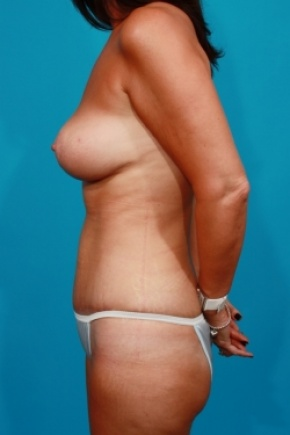 After Photo - Tummy Tuck - Case #2494 - Mommy Makeover - Lateral View