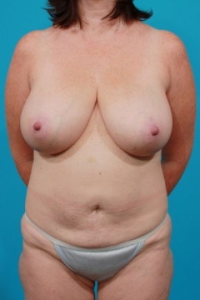 Before Photo - Tummy Tuck - Case #2495 - Mommy Makeover - Frontal View