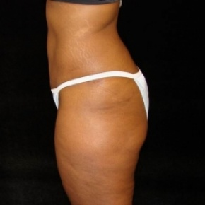After Photo - Tummy Tuck - Case #2815 - Extended Abdominoplasty (No Liposuction) - Lateral View