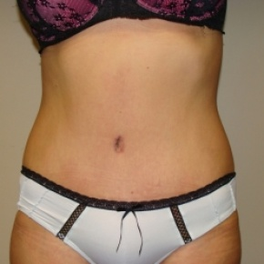 After Photo - Tummy Tuck - Case #2816 - Abdominoplasty - Frontal View