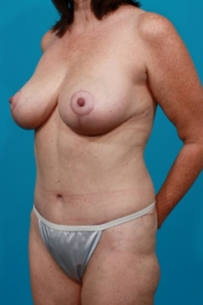 After Photo - Tummy Tuck - Case #2495 - Mommy Makeover - Oblique View