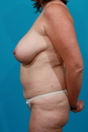 Before Photo - Tummy Tuck - Case #2495 - Mommy Makeover - Lateral View