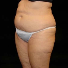 Before Photo - Tummy Tuck - Case #2819 - Full Abdominoplasty with Liposuction of Abdomen, Waist, Flanks, Dorsal Roll, and Outer Thighs - Posterior Oblique View