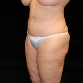 After Photo - Tummy Tuck - Case #2819 - Full Abdominoplasty with Liposuction of Abdomen, Waist, Flanks, Dorsal Roll, and Outer Thighs - Posterior Oblique View