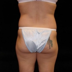Before Photo - Tummy Tuck - Case #2820 - Mini Abdominoplasty with Liposuction Abdomen, Waist, Flanks, and Outer Thighs - Worm's Eye View