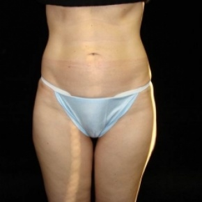Before Photo - Tummy Tuck - Case #2821 - Full Abdominoplasty with Liposuction Abdomen, Waist, Flanks, Inner and Outer Thighs with Fat Grafting to Buttocks - Frontal View