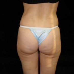 Before Photo - Tummy Tuck - Case #2821 - Full Abdominoplasty with Liposuction Abdomen, Waist, Flanks, Inner and Outer Thighs with Fat Grafting to Buttocks - Worm's Eye View