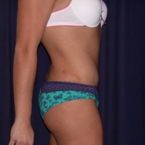 After Photo - Tummy Tuck - Case #2741 - Tummy Tuck/ Lipo-Abdominoplasty - Lateral View
