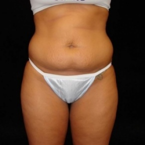 Before Photo - Tummy Tuck - Case #2822 - Full Abdominoplasty with Liposuction of Abdomen, Waist, and Flanks - Frontal View
