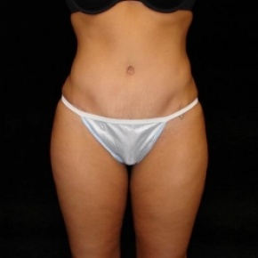 After Photo - Tummy Tuck - Case #2822 - Full Abdominoplasty with Liposuction of Abdomen, Waist, and Flanks - Frontal View