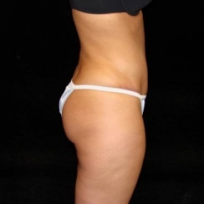 After Photo - Tummy Tuck - Case #2822 - Full Abdominoplasty with Liposuction of Abdomen, Waist, and Flanks - Oblique View