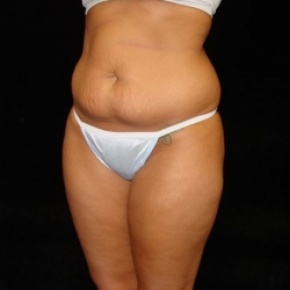 Before Photo - Tummy Tuck - Case #2822 - Full Abdominoplasty with Liposuction of Abdomen, Waist, and Flanks - Posterior Oblique View