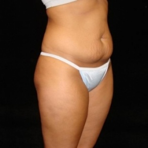 Before Photo - Tummy Tuck - Case #2822 - Full Abdominoplasty with Liposuction of Abdomen, Waist, and Flanks - Posterior View