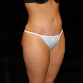 After Photo - Tummy Tuck - Case #2822 - Full Abdominoplasty with Liposuction of Abdomen, Waist, and Flanks - Posterior View