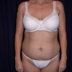 Before Photo - Tummy Tuck - Case #2742 - Tummy Tuck/ Lipo-Abdominoplasty - Frontal View