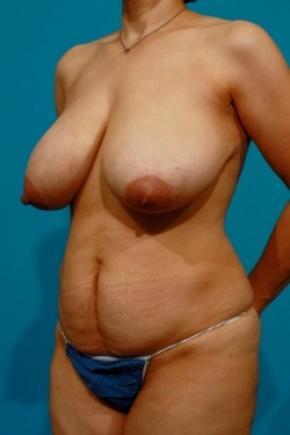 Before Photo - Tummy Tuck - Case #2496 - Mommy Makeover - Oblique View