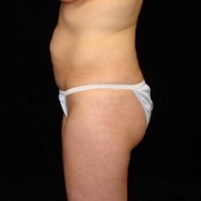 Before Photo - Tummy Tuck - Case #2823 - Full Abdominoplasty (No Liposuction) - Lateral View