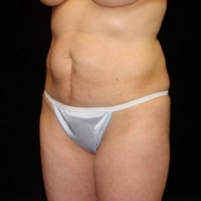 Before Photo - Tummy Tuck - Case #2823 - Full Abdominoplasty (No Liposuction) - Posterior Oblique View