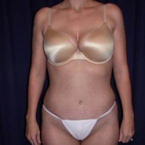 After Photo - Tummy Tuck - Case #2742 - Tummy Tuck/ Lipo-Abdominoplasty - Frontal View