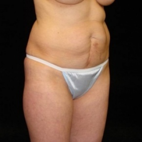 Before Photo - Tummy Tuck - Case #2823 - Full Abdominoplasty (No Liposuction) - Posterior View