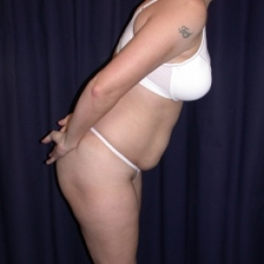 Before Photo - Tummy Tuck - Case #2742 - Tummy Tuck/ Lipo-Abdominoplasty - Oblique View
