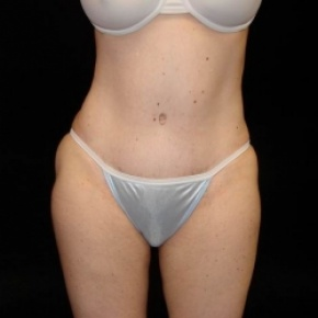 After Photo - Tummy Tuck - Case #2825 - Extended Abdominoplasty with Liposuction of Abdomen, Waist, Flanks, Dorsal Roll, Inner and Outer Thighs - Frontal View