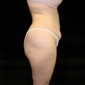 Before Photo - Tummy Tuck - Case #2825 - Extended Abdominoplasty with Liposuction of Abdomen, Waist, Flanks, Dorsal Roll, Inner and Outer Thighs - Oblique View