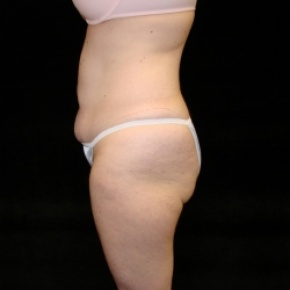 Before Photo - Tummy Tuck - Case #2825 - Extended Abdominoplasty with Liposuction of Abdomen, Waist, Flanks, Dorsal Roll, Inner and Outer Thighs - Lateral View