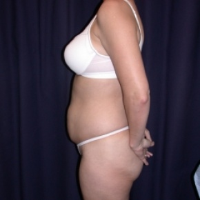 Before Photo - Tummy Tuck - Case #2742 - Tummy Tuck/ Lipo-Abdominoplasty - Lateral View