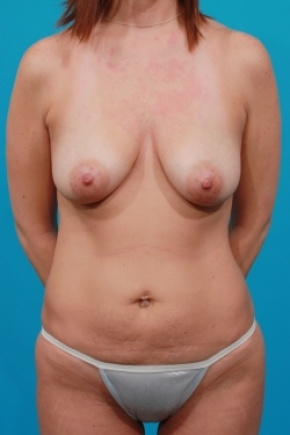 Before Photo - Tummy Tuck - Case #2497 - Mommy Makeover - Frontal View