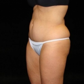 Before Photo - Tummy Tuck - Case #2826 - Mini Abdominoplasty with Liposuction of Abdomen, Waist, Flanks, Inner and Outer Thighs - Posterior Oblique View