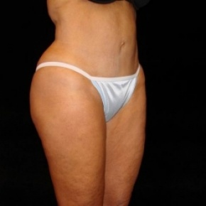 After Photo - Tummy Tuck - Case #2826 - Mini Abdominoplasty with Liposuction of Abdomen, Waist, Flanks, Inner and Outer Thighs - Posterior View