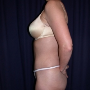 After Photo - Tummy Tuck - Case #2742 - Tummy Tuck/ Lipo-Abdominoplasty - Lateral View