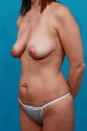 Before Photo - Tummy Tuck - Case #2497 - Mommy Makeover - Oblique View