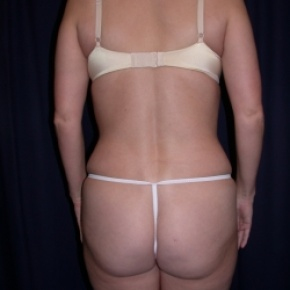 After Photo - Tummy Tuck - Case #2742 - Tummy Tuck/ Lipo-Abdominoplasty - Posterior View