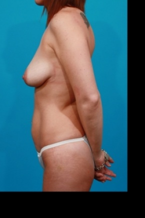 Before Photo - Tummy Tuck - Case #2497 - Mommy Makeover - Lateral View