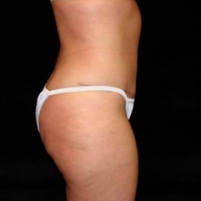 After Photo - Tummy Tuck - Case #2830 - Full Abdominoplasty with Liposuction of Abdomen, Waist, and Flanks - Oblique View