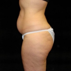 Before Photo - Tummy Tuck - Case #2830 - Full Abdominoplasty with Liposuction of Abdomen, Waist, and Flanks - Lateral View