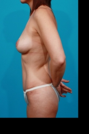 After Photo - Tummy Tuck - Case #2497 - Mommy Makeover - Lateral View