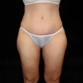 After Photo - Tummy Tuck - Case #2831 - Extended Abdominoplasty with Liposuction Abdomen, Waist, Flanks, Inner and Outer Thighs  - Frontal View