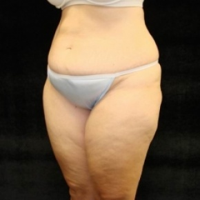Before Photo - Tummy Tuck - Case #2831 - Extended Abdominoplasty with Liposuction Abdomen, Waist, Flanks, Inner and Outer Thighs  - Posterior Oblique View