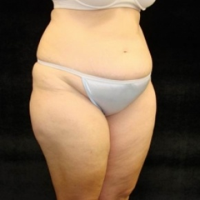 Before Photo - Tummy Tuck - Case #2831 - Extended Abdominoplasty with Liposuction Abdomen, Waist, Flanks, Inner and Outer Thighs  - Posterior View