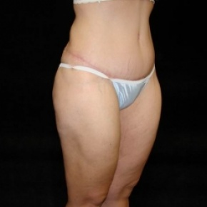 After Photo - Tummy Tuck - Case #2831 - Extended Abdominoplasty with Liposuction Abdomen, Waist, Flanks, Inner and Outer Thighs  - Posterior View