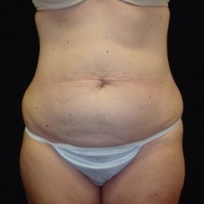 Before Photo - Tummy Tuck - Case #2832 - Full Abdominoplasty with Liposuction of Abdomen, Waist, Flanks, and Inner Thighs - Frontal View