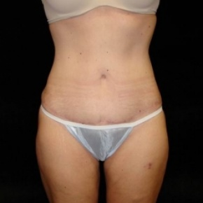 After Photo - Tummy Tuck - Case #2832 - Full Abdominoplasty with Liposuction of Abdomen, Waist, Flanks, and Inner Thighs - Frontal View