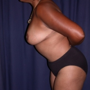 After Photo - Tummy Tuck - Case #2743 - Mommy Make Over: Tummy Tuck and Bilateral Breast Reduction - Oblique View