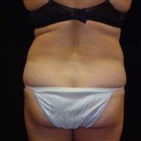 Before Photo - Tummy Tuck - Case #2833 - Full Abdominoplasty with Liposuction of Abdomen, Waist, Flanks, and Inner Thighs - Worm's Eye View