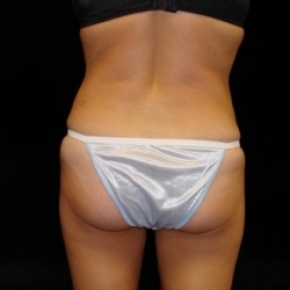 After Photo - Tummy Tuck - Case #2833 - Full Abdominoplasty with Liposuction of Abdomen, Waist, Flanks, and Inner Thighs - Worm's Eye View