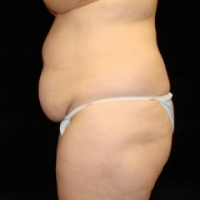 Before Photo - Tummy Tuck - Case #2834 - Extended Abdominoplasty with Liposuction of Abdomen, Waist, Flanks and Dorsal Roll - Lateral View